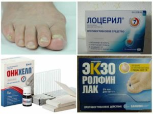 6 лучших средств от грибка ногтей