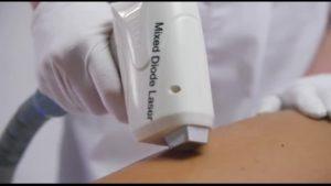 Сравниваем диодный и александритовый лазер для эпиляции | Определяем лучший