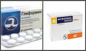 Сравниваем Глиформин и Метформин | Что выбрать