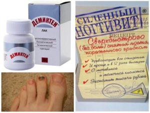 Сравниваем препараты Лоцерил и Офломил | Что лучше