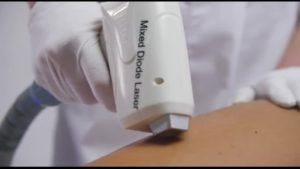 Сравниваем диодный и александритовый лазер для эпиляции   Определяем лучший