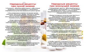 13 лучших средств для лечения экземы