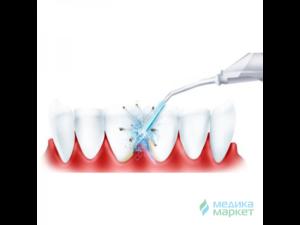 Как выбрать ирригатор для полости рта – ттт‹ЂЉЋЊЉЂттты стоматологов